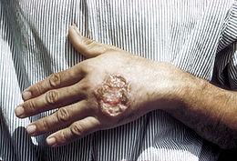260px-skin_ulcer_due_to_leishmaniasis2c_hand_of_central_american_adult_3mg0037_lores